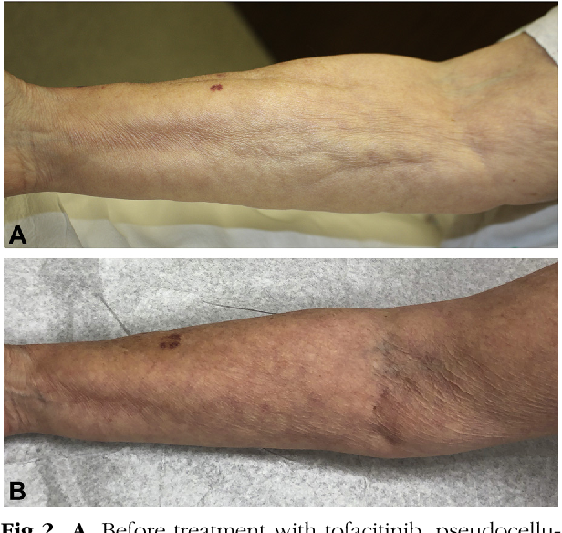 Treatment Of Generalized Deep Morphea And Eosinophilic Fasciitis