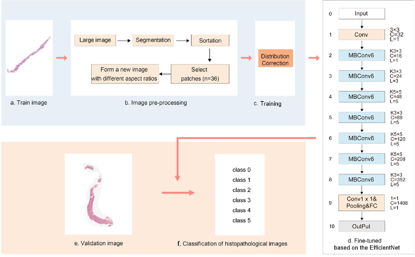Figure 3 for Automated Prostate Cancer Diagnosis Based on Gleason Grading Using Convolutional Neural Network