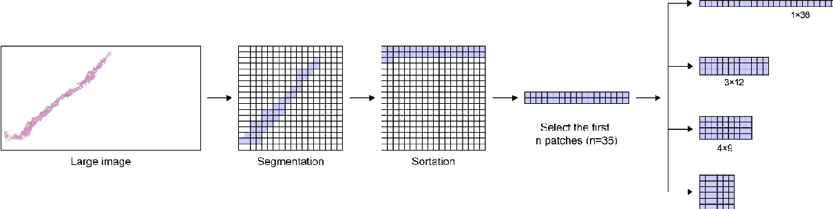 Figure 4 for Automated Prostate Cancer Diagnosis Based on Gleason Grading Using Convolutional Neural Network