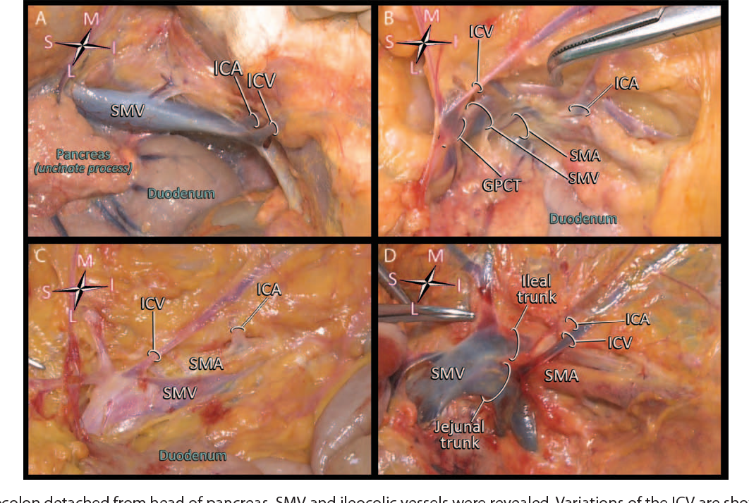 Variations in the Vascular Anatomy of the Right Colon and ...