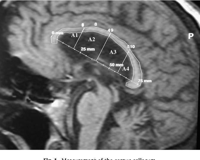 Corpus Callosum Function In Verbal Dichotic Listening Inferences