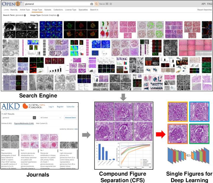 Figure 1 for Compound Figure Separation of Biomedical Images with Side Loss