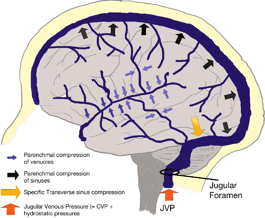 Figure 4 From Hypoxia 2015 The Cerebral Venous System And Hypoxia X