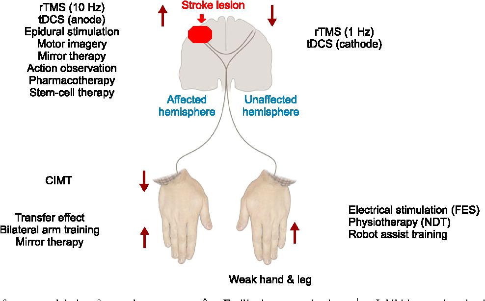 PDF] Optimal Strategies of Upper Limb Motor Rehabilitation after