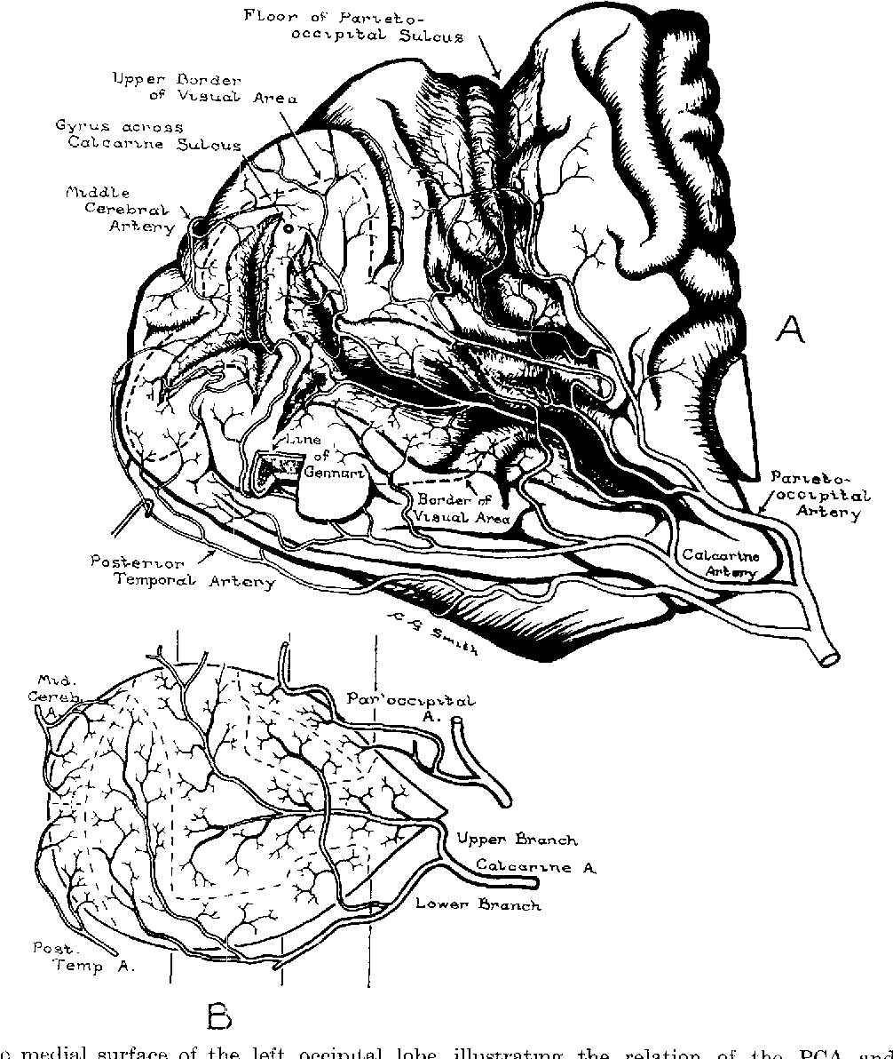 Figure 4 from Cortical branches of the posterior cerebral artery ...