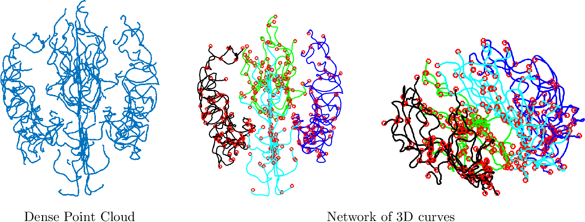 Figure 1 for Statistical shape analysis of brain arterial networks (BAN)