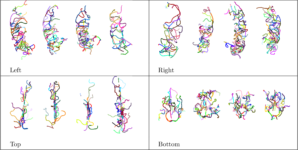 Figure 2 for Statistical shape analysis of brain arterial networks (BAN)
