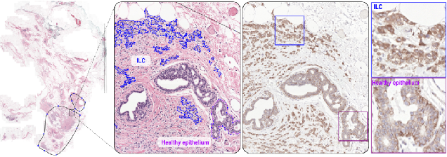 Figure 3 for HookNet: multi-resolution convolutional neural networks for semantic segmentation in histopathology whole-slide images