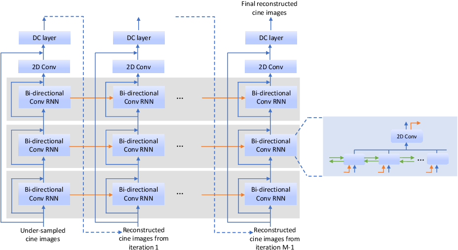 Figure 1 for Real-Time Cardiac Cine MRI with Residual Convolutional Recurrent Neural Network