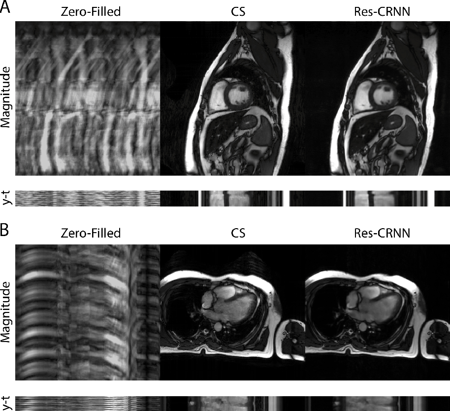 Figure 2 for Real-Time Cardiac Cine MRI with Residual Convolutional Recurrent Neural Network