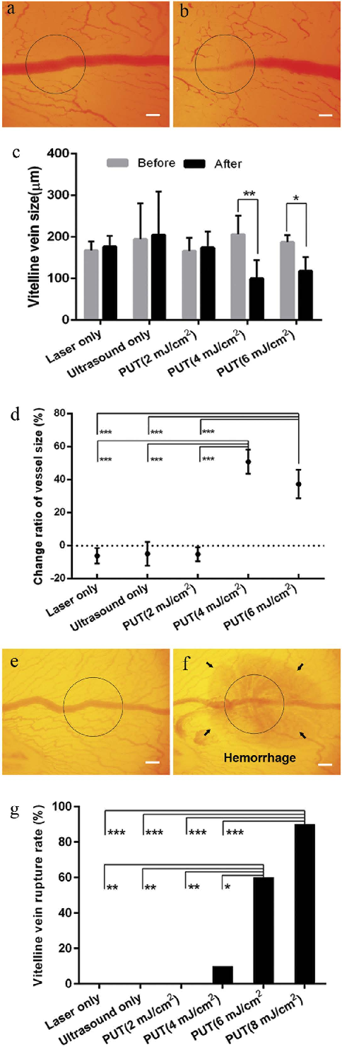 Figure 2. PUT on single blood vessels (veins) on chicken yolk sac membrane. (a,b) The photographs of a vessel before and after treatment, respectively. The vessel was treated by PUT with 0.45 MPa ultrasound negative peak pressure and 4 mJ/cm2 laser fluence at 532 nm. (c) Changes in blood vessel diameters after different treatments, including laser only (no ultrasound), ultrasound only (no laser), ultrasound and laser at 2 mJ/cm2 fluence, ultrasound and laser at 4 mJ/cm2 fluence, and ultrasound and laser at 6 mJ/cm2 fluence. Vertical bars demonstrate the standard deviation. (d) The relative change of the vitelline vein diameters [(Dbefore − Dafter)/ Dbefore, where Dbefore is the diameter before treatment, and Dafter is the diameter after treatment]. It shows that statistical significances exist between either of the two PUT groups (4 mJ/cm2 and 6 mJ/cm2 laser fluence) and any of the other three groups (ultrasound only, laser only, and PUT with 2 mJ/cm2 laser fluence). (e,f) The photographs of a vessel disrupted by PUT with 8 mJ/cm2 laser fluence at 532 nm. (g) Rate of vessel disruption for each treatment group. It shows that, in comparison with other groups, the disruption rates were remarkably high for PUT with 6 mJ/cm2 and 8 mJ/cm2 laser fluence. The applied laser fluence for laser-only groups: 20 mJ/cm2. The applied ultrasound negative peak pressure: 0.45 MPa, n = 10 for each group. The treated area is circled. *p < 0.05; **p < 0.01, ***p < 0.001. Scale bar: 200 μ m.