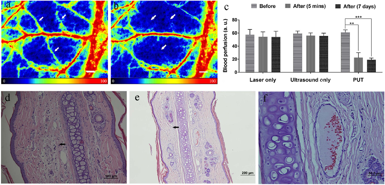Figure 4. Effect of PUT on a rabbit ear model in vivo and histological photographs of rabbit ear tissues. (a,b) Examples of the blood perfusion maps measured by a PeriCam PSI System before and after PUT on a rabbit ear. The perfusion map clearly demonstrated diminished blood flow in the treated microvessels (white arrows) after the treatment. Scale bar: 1000 μ m. (c) Averaged blood perfusion rate in the target microvessels before and after PUT treatment in 5 rabbits. **p < 0.01, ***p < 0.001. The applied ultrasound negative peak pressure was 0.45 MPa at 1 MHz with 10% duty cycle, and the laser fluence was 20 mJ/cm2 at 584 nm. (d) H&E stain image of rabbit ear tissue without PUT treatment, showing a normal auricular microvessel with a monolayer of integrated endothelial cells, basement membrane, and vascular smooth muscle (scale bar: 50 μ m). (e,f) H&E stain images of rabbit ear tissue immediately following and 7 days after PUT treatment (scale bar: 50 μ m), respectively. The formation of fibrin clot (black arrow) within the lumen in an auricular vein can be noticed, while the surrounding cells outside the blood vessel are not damaged.