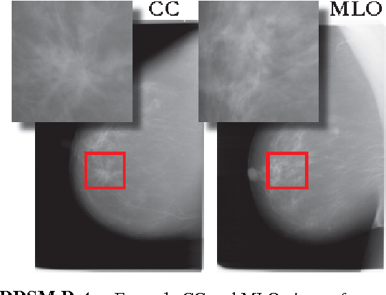Figure 1 for Optimizing and Visualizing Deep Learning for Benign/Malignant Classification in Breast Tumors