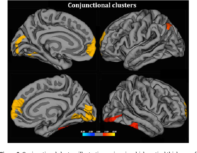 Cortical thickness in untreated transsexuals