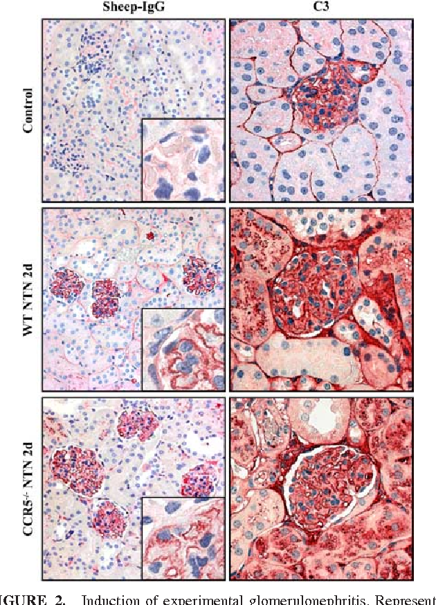 FIGURE 2 Induction Of Experimental Glomerulonephritis Representative Photographs Kidney Sections WT And