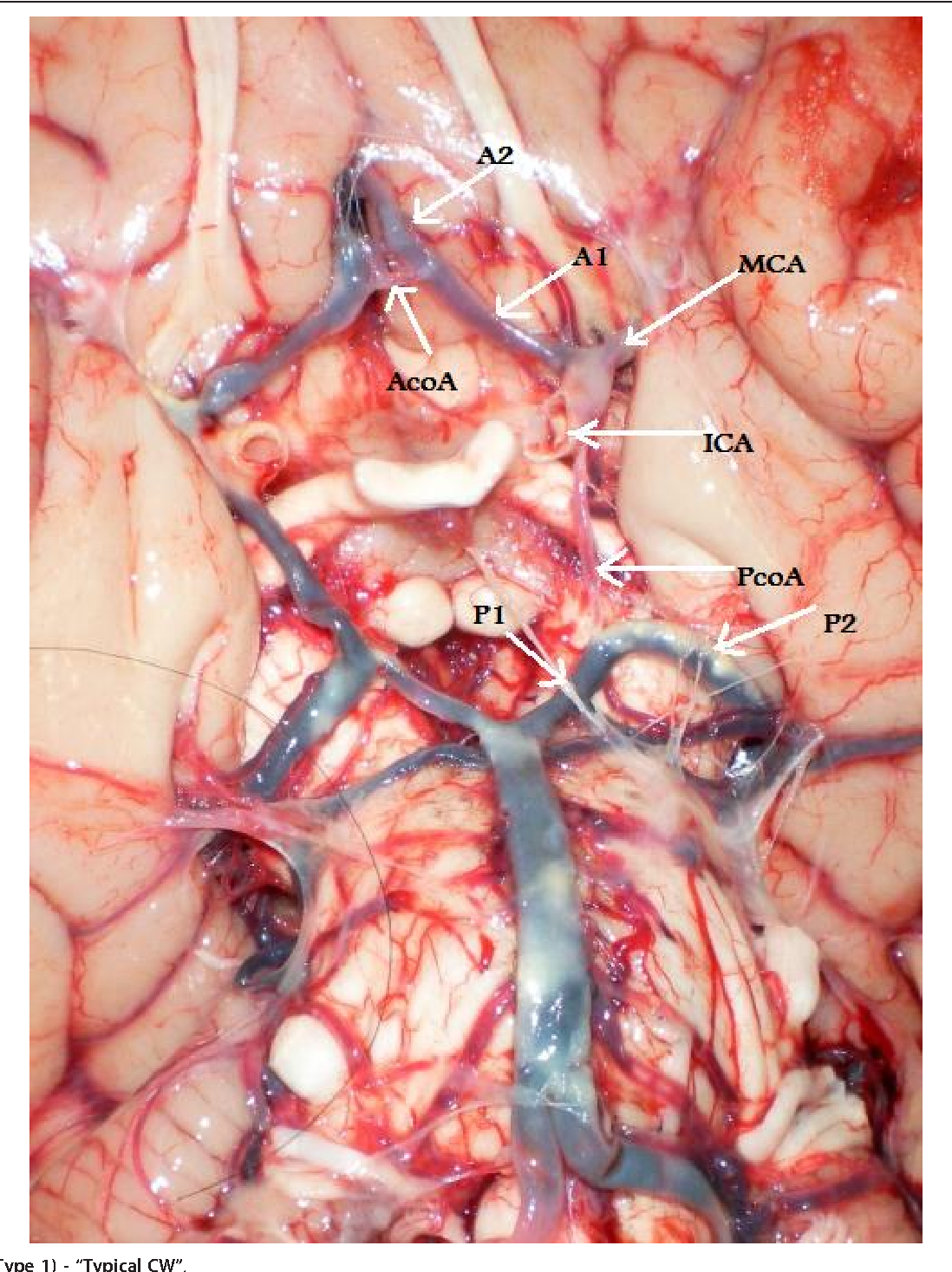 Types of the cerebral arterial circle (circle of Willis) in a Sri ...