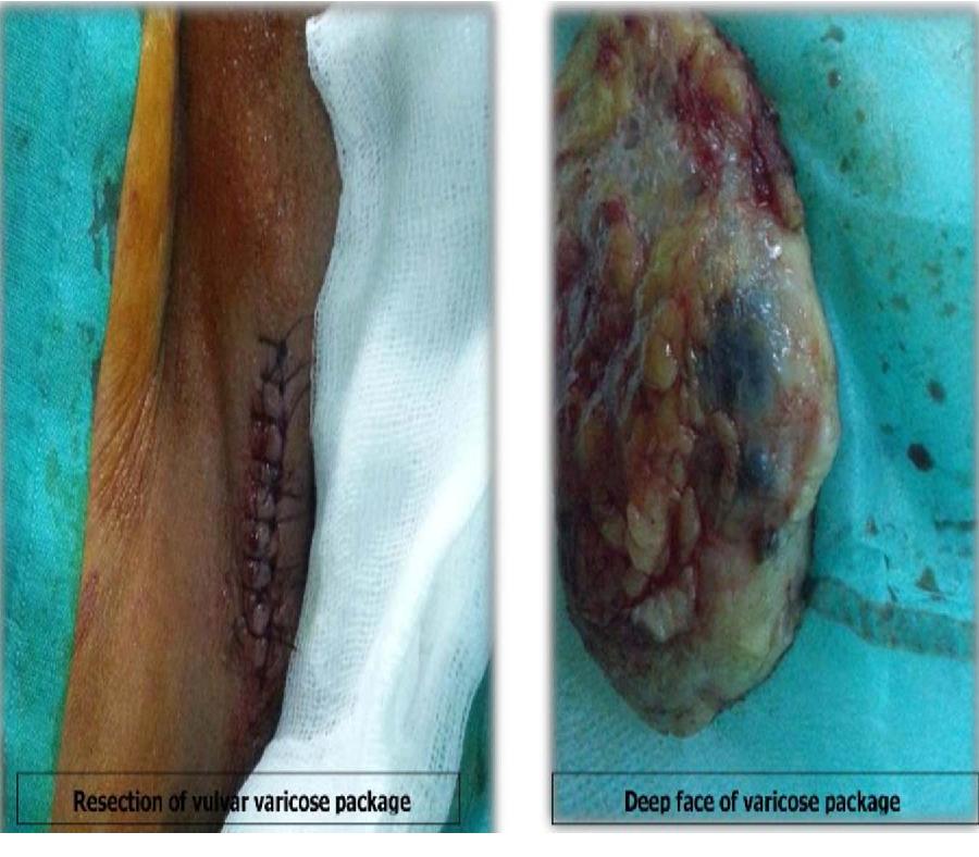 varicose veins genital area