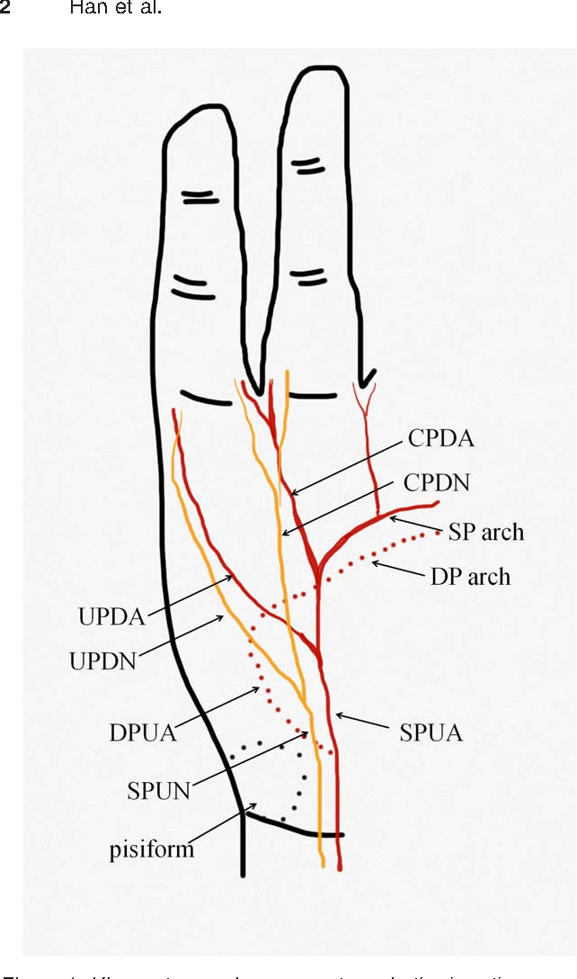 A perforator from the ulnar artery and cutaneous nerve of the ...
