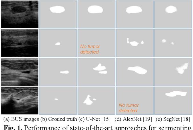 Figure 1 for Stan: Small tumor-aware network for breast ultrasound image segmentation