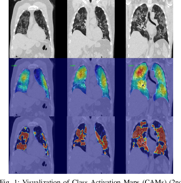 Figure 1 for Dense Regression Activation Maps For Lesion Segmentation in CT scans of COVID-19 patients