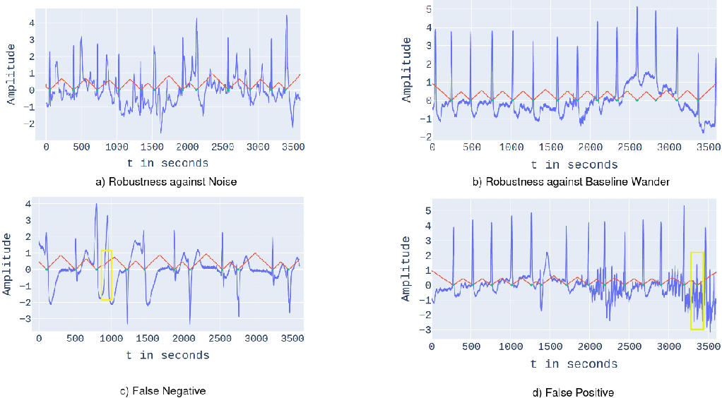 Figure 3 for RPnet: A Deep Learning approach for robust R Peak detection in noisy ECG