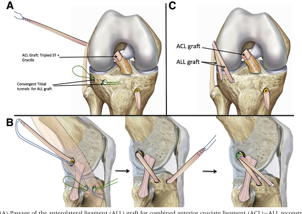 Combined Anterior Cruciate Ligament And Anterolateral Ligament