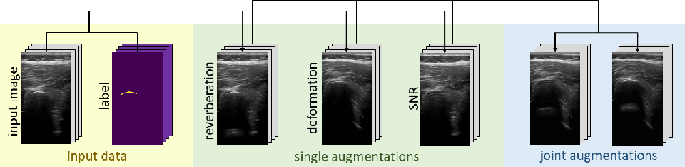 Figure 1 for Rethinking Ultrasound Augmentation: A Physics-Inspired Approach