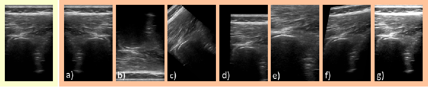 Figure 3 for Rethinking Ultrasound Augmentation: A Physics-Inspired Approach