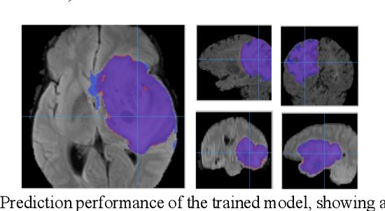 Figure 3 for Addressing the Memory Bottleneck in AI Model Training
