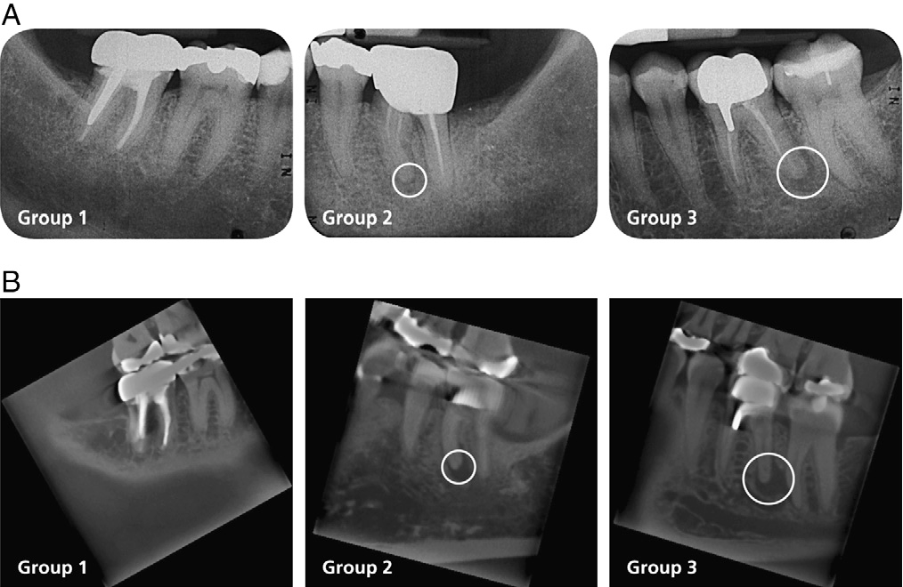 Comparison of periapical radiography and limited cone-beam computed ...