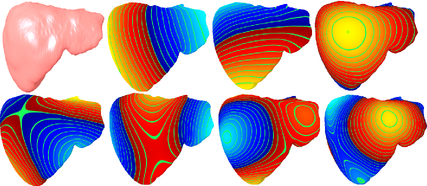 Figure 1 for Deep Shape Analysis on Abdominal Organs for Diabetes Prediction