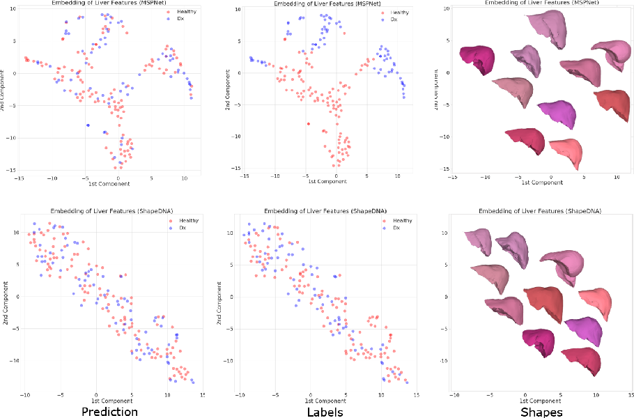 Figure 4 for Deep Shape Analysis on Abdominal Organs for Diabetes Prediction