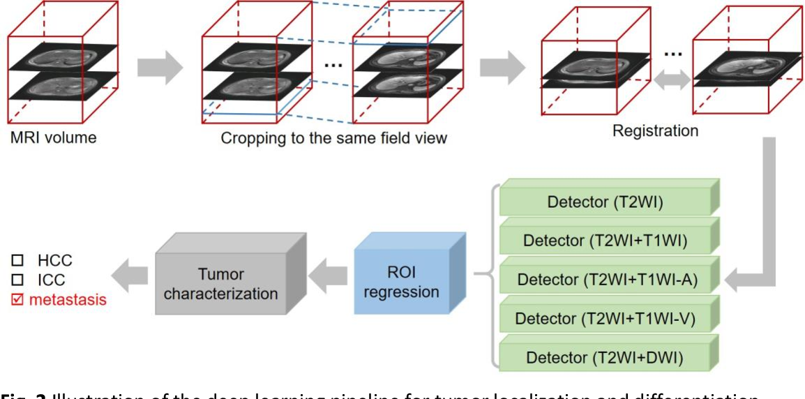 Figure 3 for A deep learning pipeline for localization, differentiation, and uncertainty estimation of liver lesions using multi-phasic and multi-sequence MRI