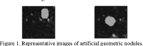 Figure 1 for Deep Learning for the Classification of Lung Nodules