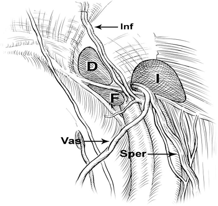 Figure 1 from Laparoscopic inguinal hernia repair. - Semantic Scholar