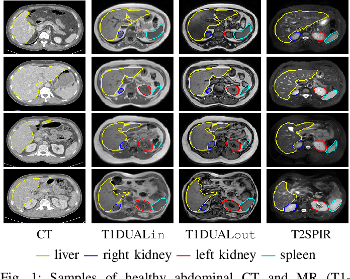 Figure 1 for Abdominal multi-organ segmentation with cascaded convolutional and adversarial deep networks