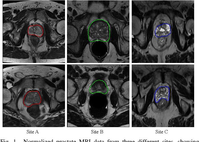 Figure 1 for MS-Net: Multi-Site Network for Improving Prostate Segmentation with Heterogeneous MRI Data