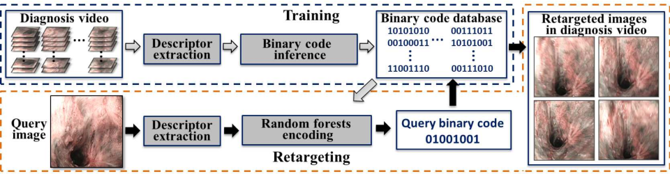 Figure 1 for Robust Image Descriptors for Real-Time Inter-Examination Retargeting in Gastrointestinal Endoscopy
