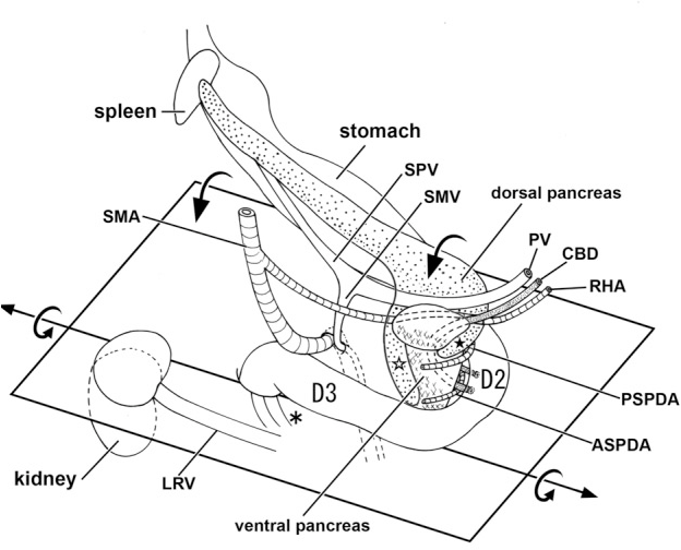 Fetal Topographical Anatomy Of The Pancreatic Head And Duodenum With