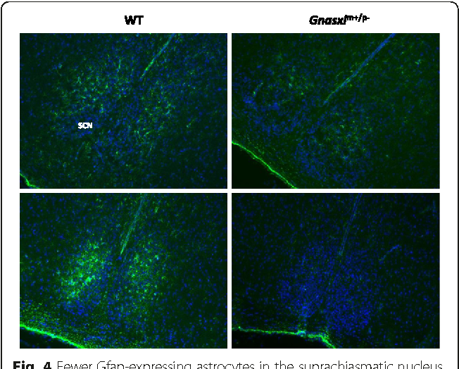 Fig. 4 Fewer Gfap-expressing astrocytes in the suprachiasmatic nucleus (SCN). Gfap-immunofluorescence (green) in the SCN of two adult WT and Gnasxlm+/p- littermates (nuclear stain: DAPI). Images taken at original magnification 100 x