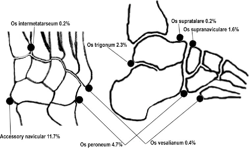 Incidence Of Accessory Ossicles And Sesamoid Bones In The Feet A