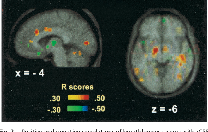 Figure 2 from Brain responses associated with consciousness