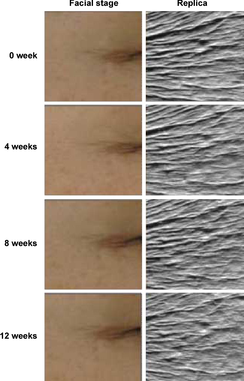 Figure 4 Representative facial images and replicas of wrinkle improvement in the crow's feet area at baseline and after 4, 8, and 12 weeks of bee-venom serum use.