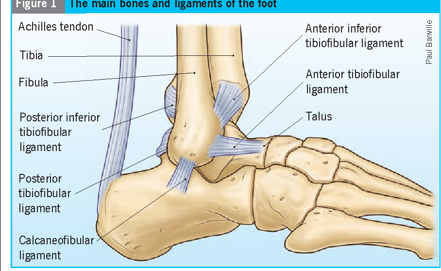 Avulsion fracture of the calcaneal tuberosity: diagnosis and ...