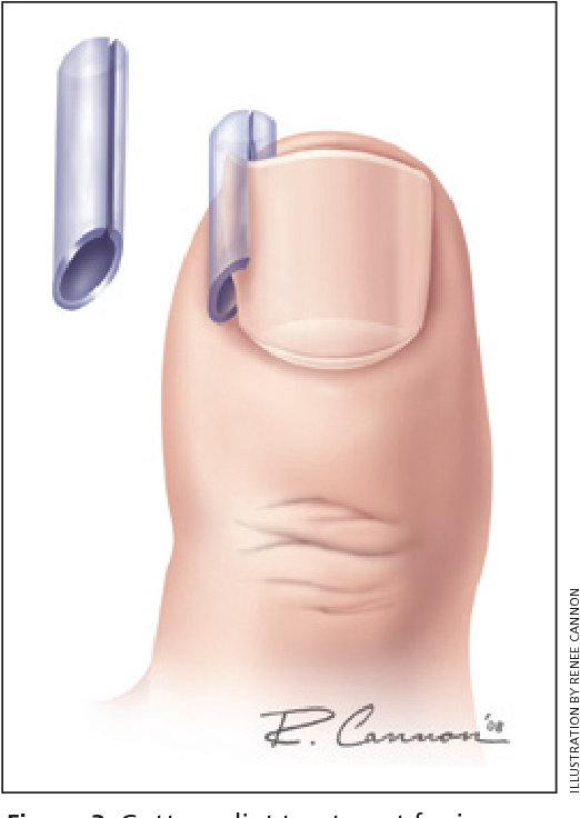 Figure 3 from Management of the ingrown toenail. - Semantic Scholar