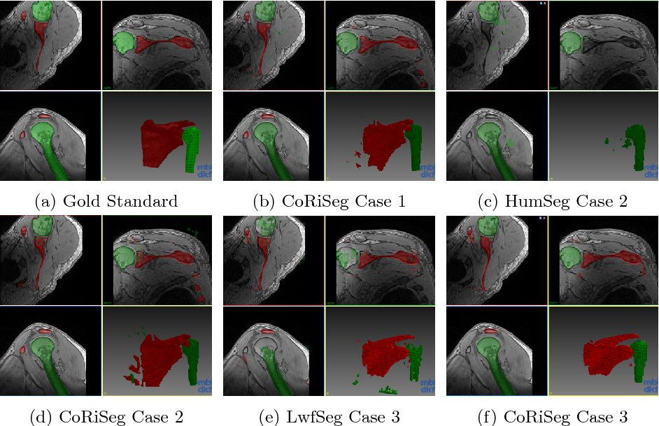 Figure 4 for Learn the new, keep the old: Extending pretrained models with new anatomy and images