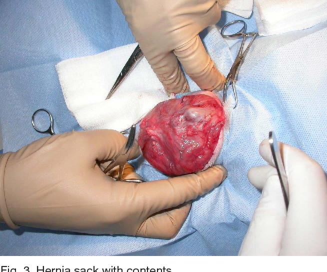 Figure 3 from Abdominal hernia repair surgery with the new