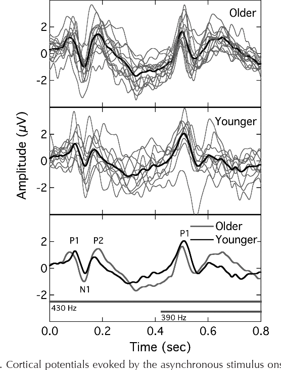 Electrophysiological measurement of binaural beats: effects of