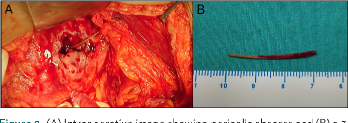 Figure 2. (A) Intraoperative image showing pericolic abscess and (B) a 3- cm fish bone.