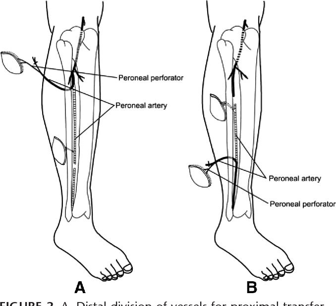 The Extended Peroneal Artery Perforator Flap For Lower Extremity